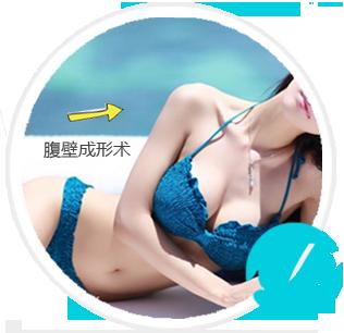 腹壁成形术