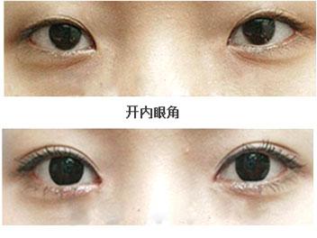韩国眼部手术