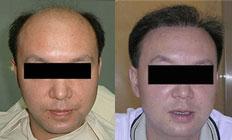植发前后对比照
