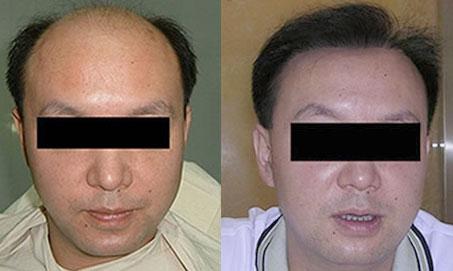 毛发移植对比照