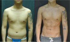 腹肌整形前后对比照