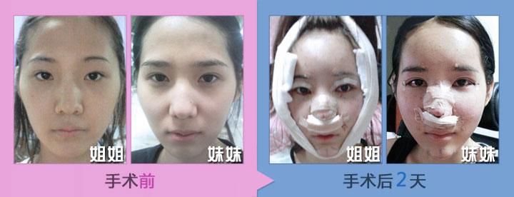 手术前与手术后2天照片